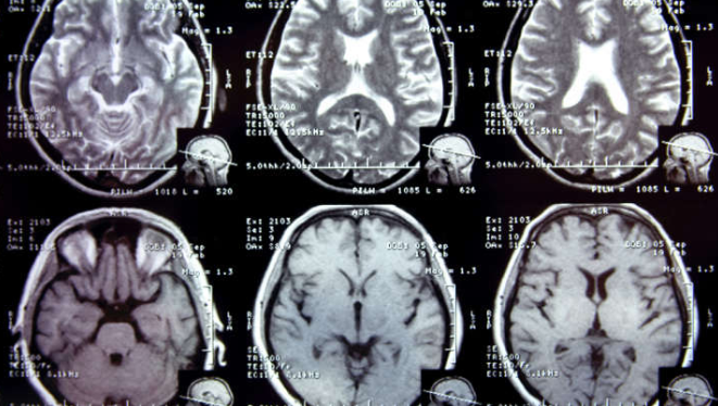 AI detects sign of Alzheimer | IFL Science